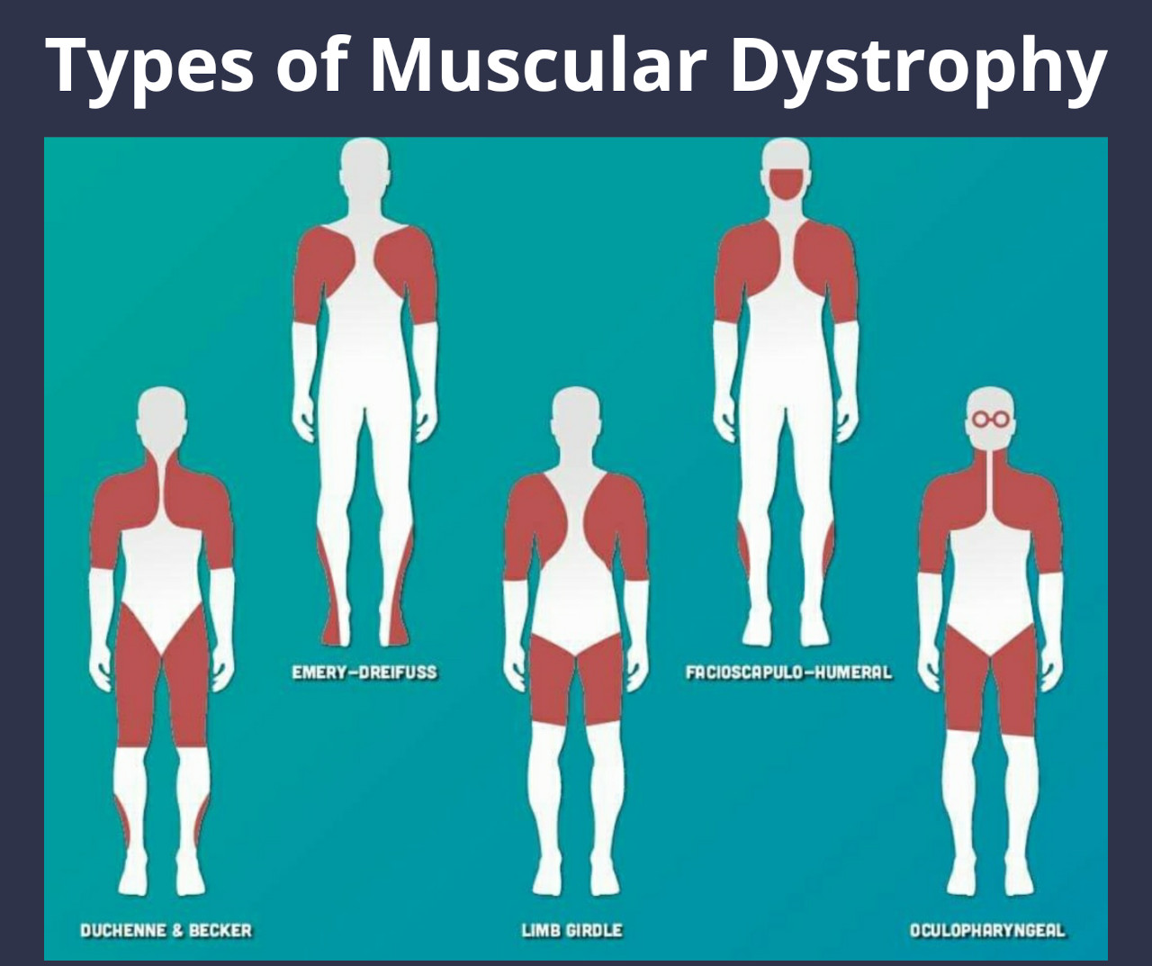 Types of Muscular Dystrophy